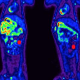 Vagus Nerve Stimulation to treat IBD