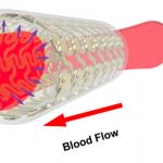 Blood flow within printed artery diagram